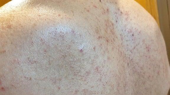 lesiones vesiculosas