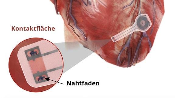 Illustration - Herzschrittmacher