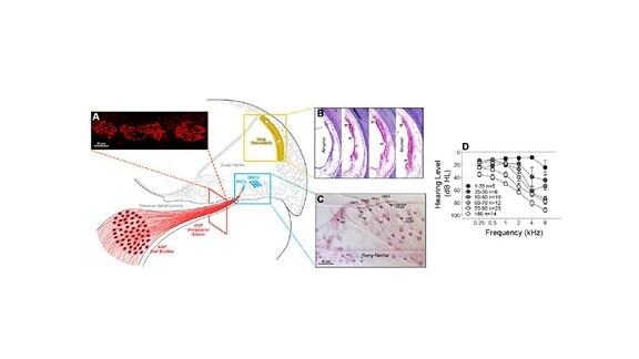 Drei Faktoren wirken auf das Hörvermögen ein (D): Hörnervenfasern (A), Stria Vascularis (B) und Haarzellen (C).