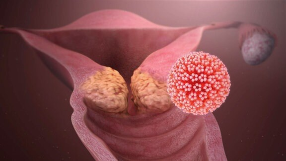 Grafische Darstellung der Gebärmutter mit einem runden Virenkörper davor.