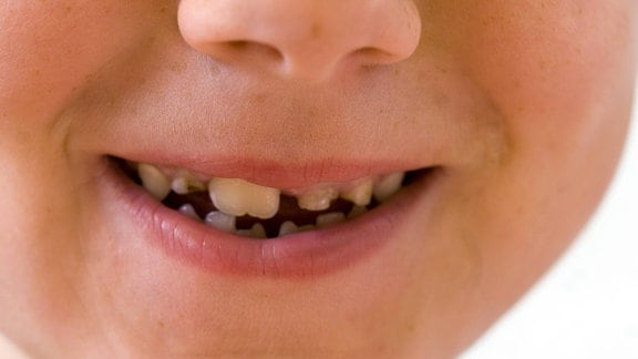 Kinderlächeln mit kaputten Zähnen
