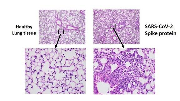 Vergleich von Lungengewebe von Mäusen, links von gesunden Tieren, rechts von Tieren, die mit dem Sars-CoV-2 Spikeprotein infiziert wurden.