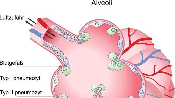 Grafische Darstellung eines Lungenbläschens. An den Typ II Pneumozyten dockt das Sars-CoV-2-Virus an.