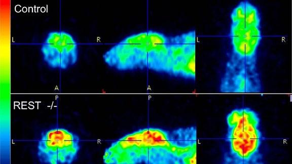 MRT-Bilder von Mäusegehirnen