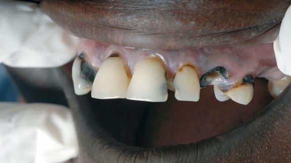 chronische Zahnfleischentzündung