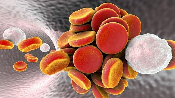 Illustration - Thrombose - Klumpen von Blutplättchen