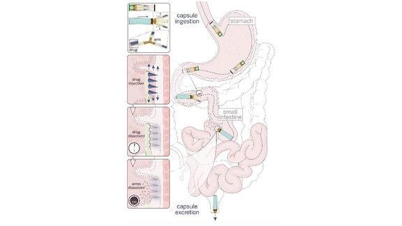 Funktionsweise der Mikronadeln