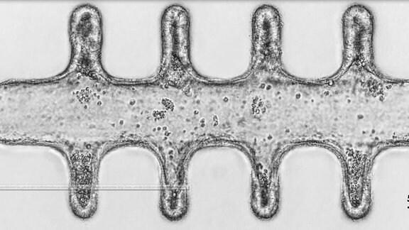 Zellen siedeln sich entlang des künstlichen Gerüsts an.