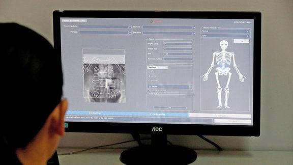 Ermittlung des Osteoporose-Risikos