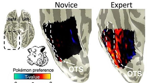Schematische Darstellung von zwei Hirnregionen mit verschieden großen, farbig markierten Arealen