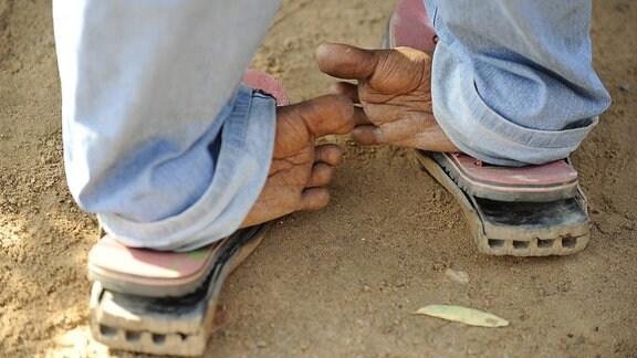Ein an Polio erkrankter Mann steht auf verdrehten Füßen