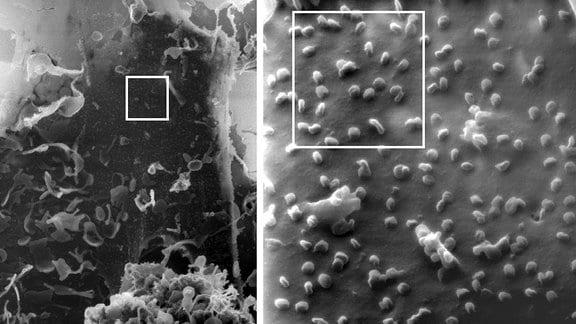 Eine mit SARS-CoV-2-infizierte Nierenzelle unter dem Heliumionen-Mikroskop - ausschnittsweise Vergrößerung von links nach rechts, ein einzelnes Virus ist etwa 100 Nanometer groß.