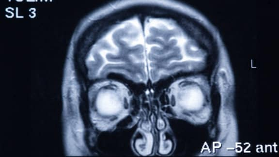 Röntgenbild eines Schädels