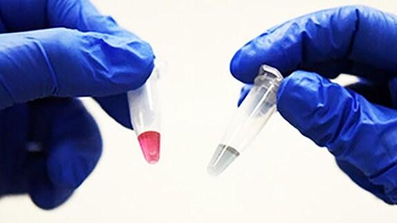 Zwei Hände in blaunen Gummihandschuhen halten jeweils eine kleine Ampulle in die Höhe. In der einen eine blaue Flüssigkeit, in der anderen eine rote Flüssigkeit.