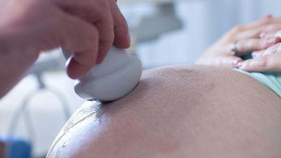 Arzt führt Ultraschalluntersuchung bei einer Schwangeren durch.