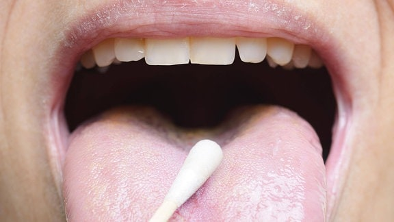 Zungenabstrich