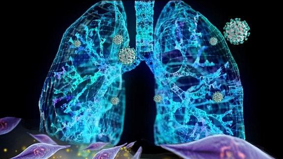 Die aus der Nabelschnur gewonnenen, mesenchymalen Stammzellen bewegen sich direkt in die Lunge, wo sie das durch Covid-19 zerstörte Gewebe wiederherstellen.