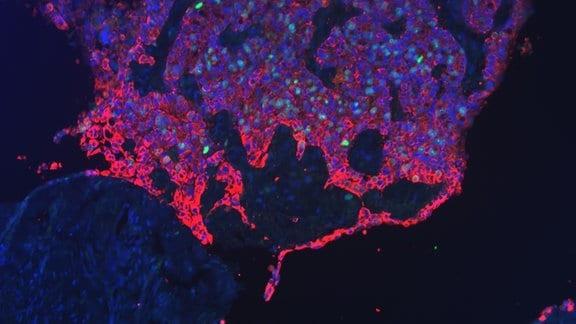 Fluoreszenzbild einer Tumorfront des Gebärmutterhals. Zellkerne wurden blau und sich teilende Zellen grün markiert. Tumorzellen, rot markiert, befallen und verdrängen gesundes Gewebe.