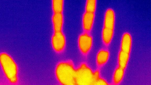 Wärmebild Hand