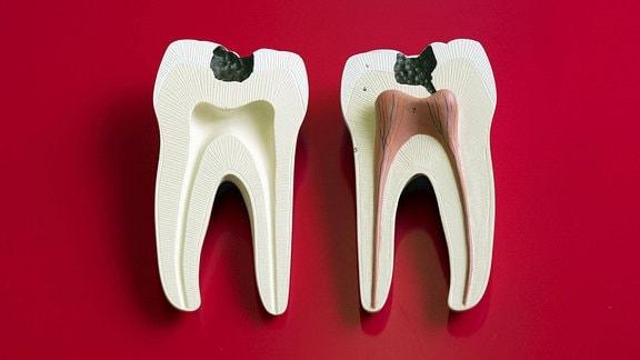 Zahnmodell mit Karies