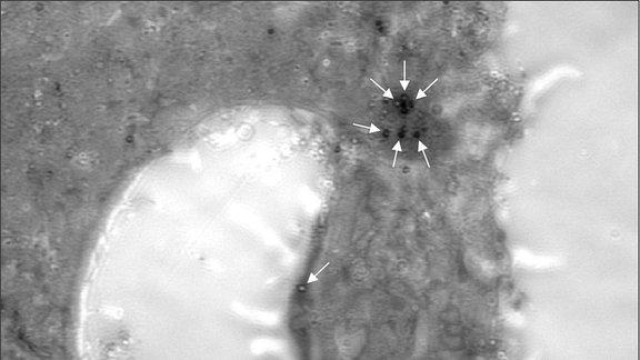Mikroskopp-Aufnahme: Menschliche Zelle, infiziert mit Vaccinia-Viren.